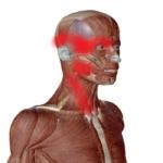 こめかみ頭痛側面図