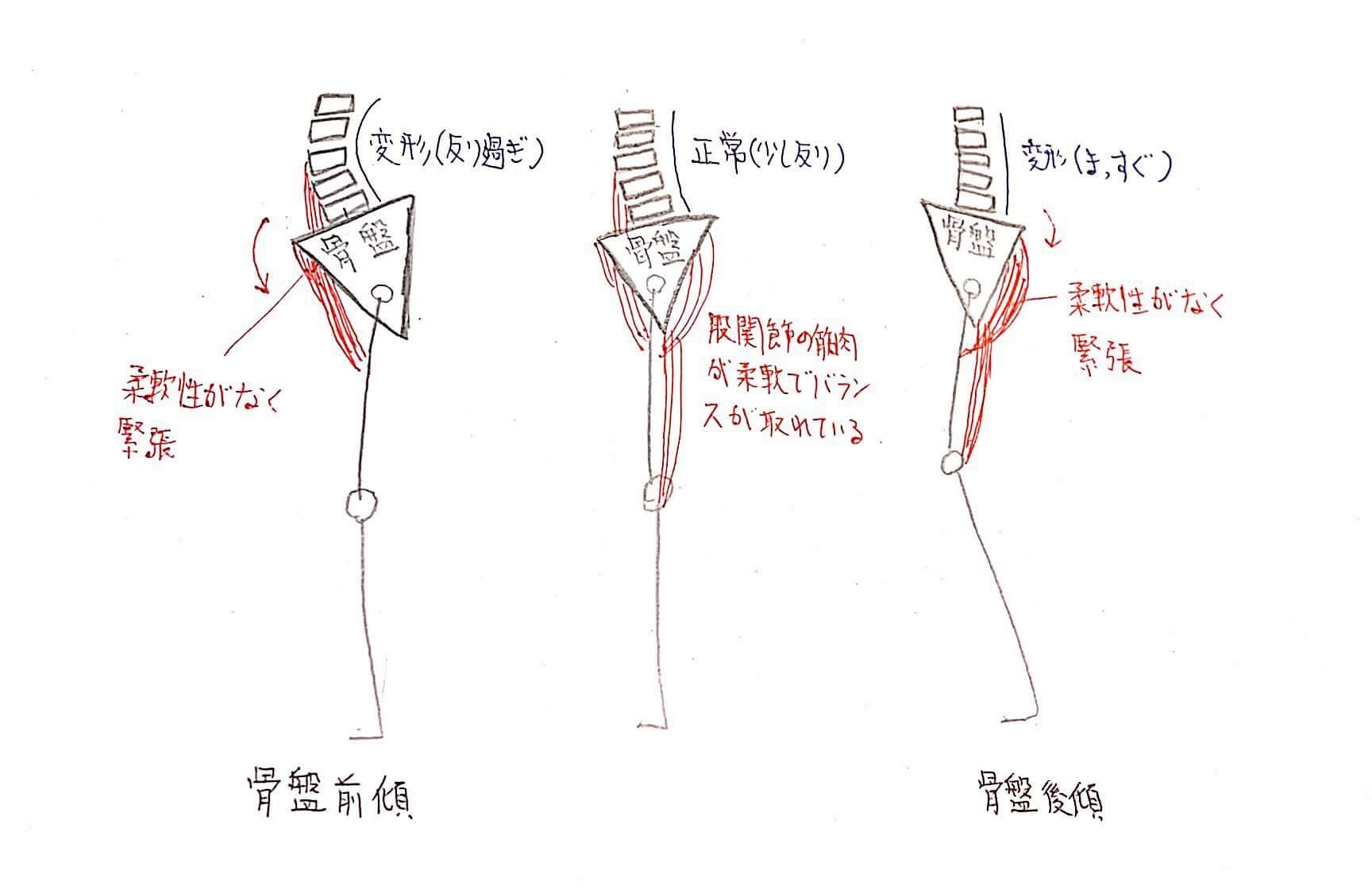 骨盤の筋バランス