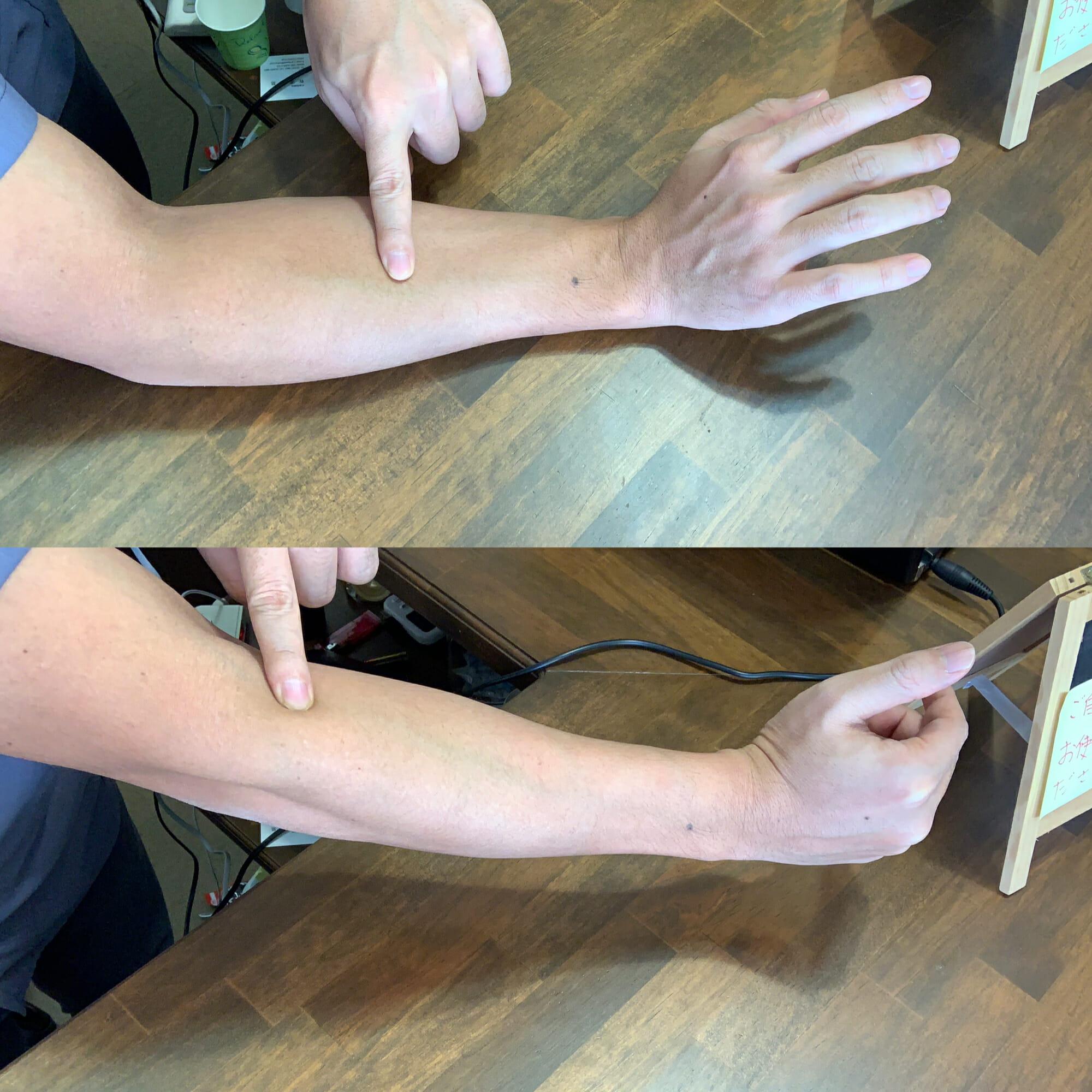 手首や肘へのマッサージボールの使い方