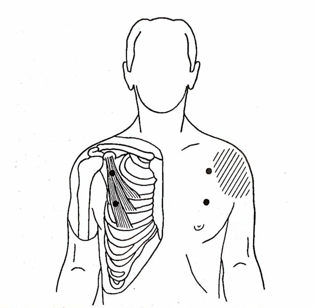 胸筋のトリガーポイントの位置