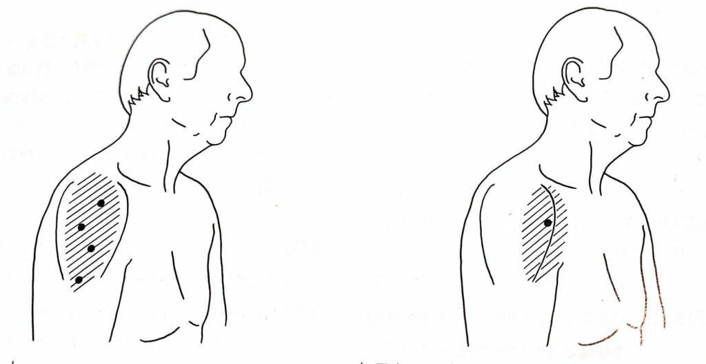 腕の上部である三角筋のトリガーポイントの位置