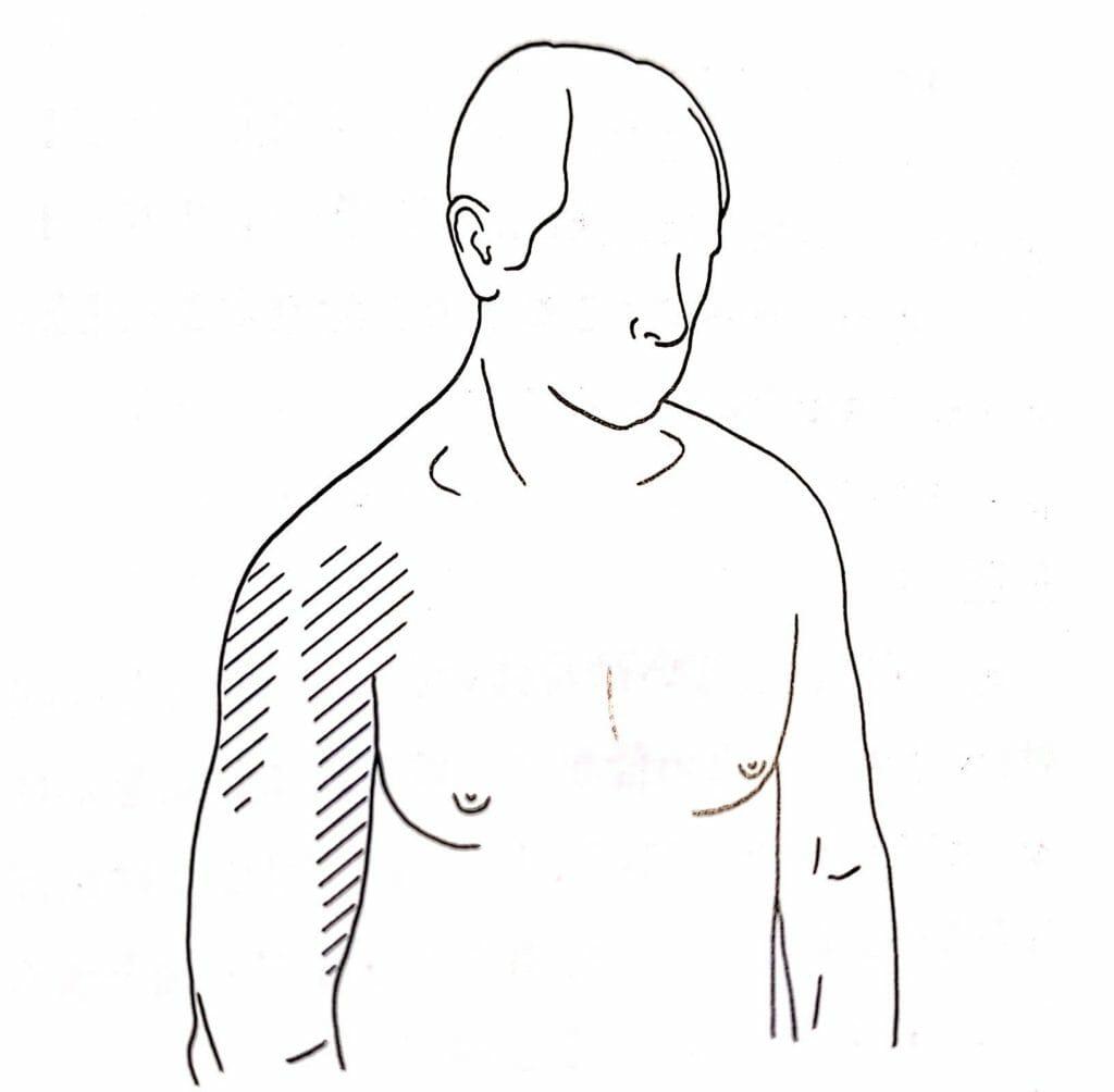 肩甲骨のトリガーポイントの関連痛は、肩に現れる