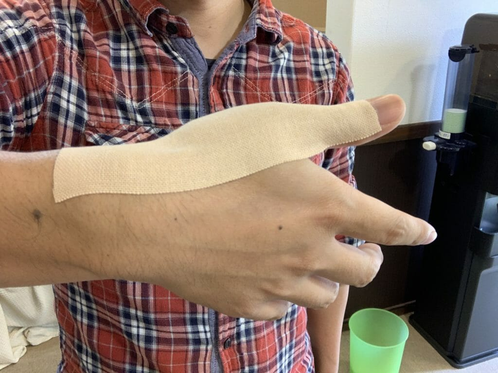 【腱鞘炎の処置】親指にテープを貼る