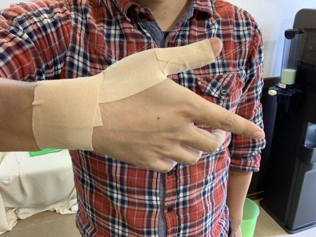 【腱鞘炎の処置】親指にテープを巻く