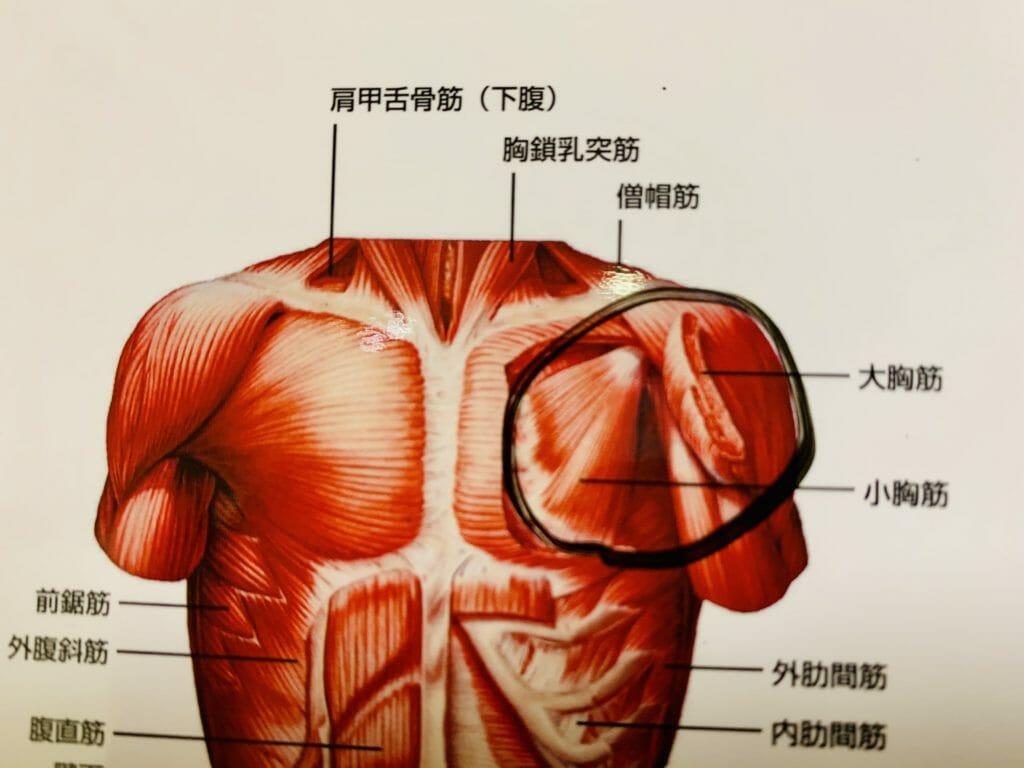 胸筋のトリガーポイントのマッサージ