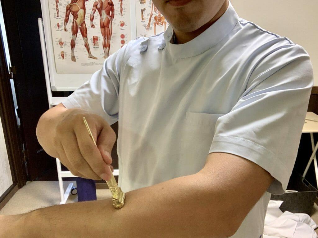 ローラー鍼で腕のセルフケアをしている様子