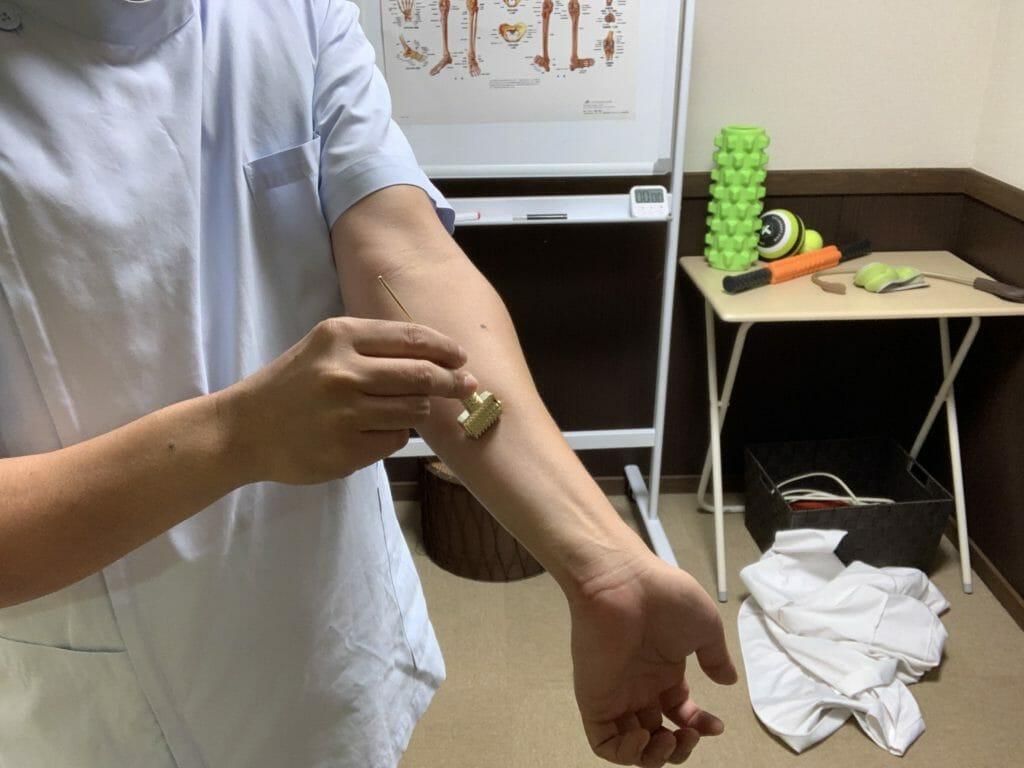 ローラー鍼で血行が良くなる事実を確認