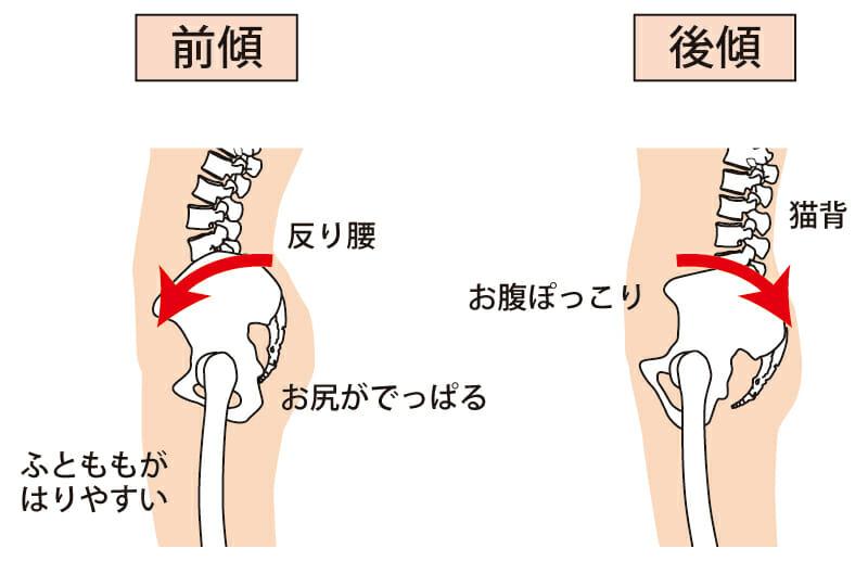 反り腰の腰痛は、骨盤が前傾することにより起こります